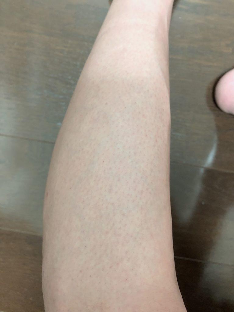 足の周り脱毛